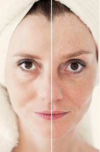 Face Brightening Age Spot Removal Burlington Vermont