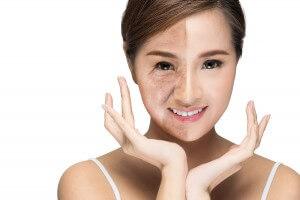 anti aging facial Burlington Vermont