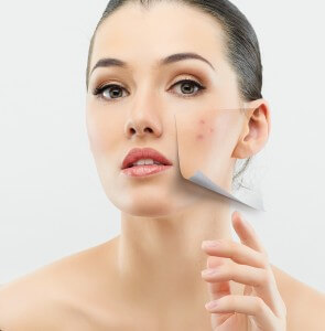 acne facial deep cleansing facial Burlington Vermont